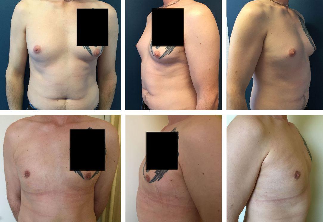 Photos avant / après d'opération de gynécomastie (seins chez l'homme) à Metz par le docteur De Runz
