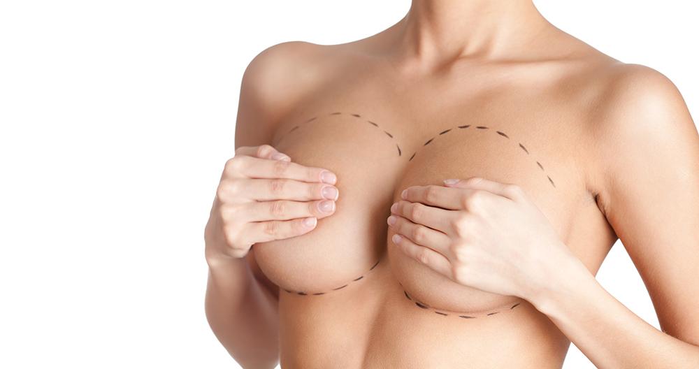 Augmentation mammaire à Metz - Docteur Antoine De Runz