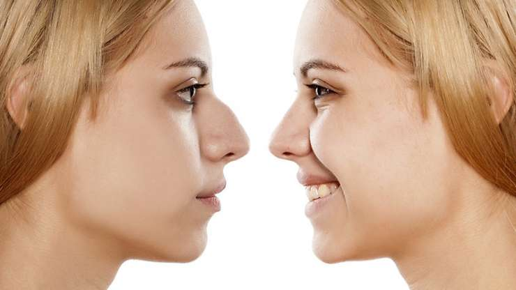 Perception Sociale de la Rhinoplastie